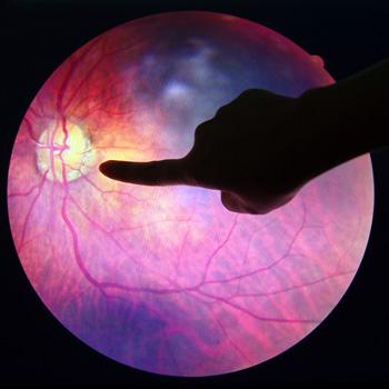 Puede haber múltiples aplicaciones de deep learning en la salud.