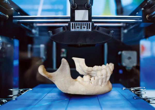 Modelos 3D para optimizar cirugías