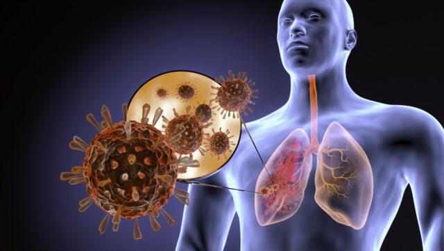 IA e imagenología para diagnosticar neumonía causada por COVID-19