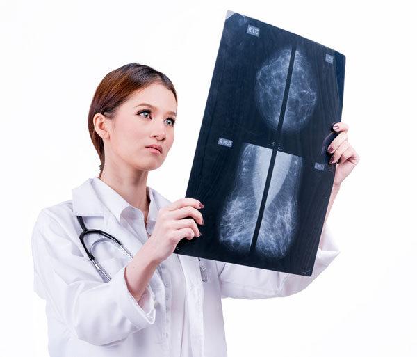 Inteligencia artificial para detectar el cáncer de mama